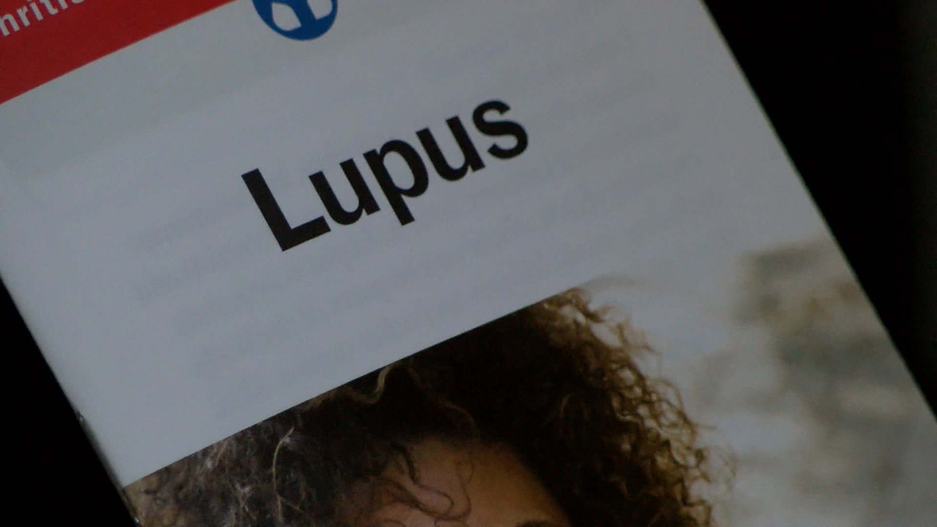 LUPUS PIC_1469055432186.jpg