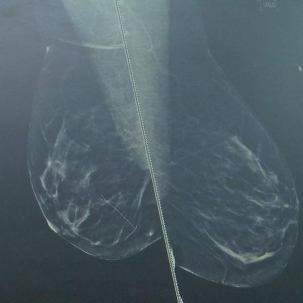 breast cancer _1477502401389.jpg