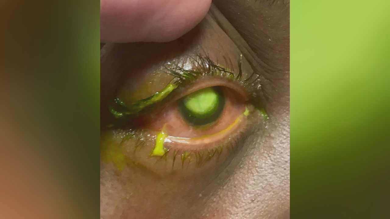 eye doctor warns against sleeping in contacts-846653543