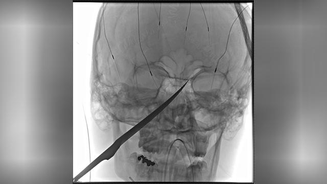 Kansas boy knife in skull-873703986